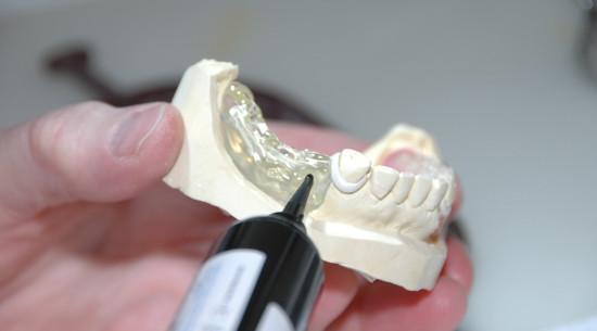 Prótesis dental fija Galapagar